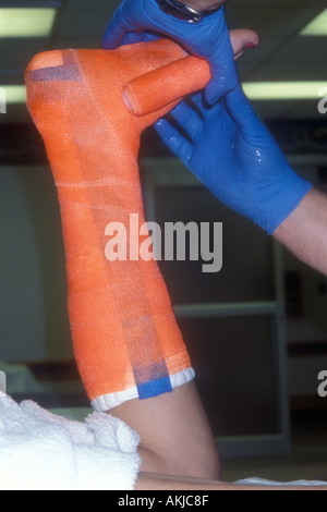 Ankle Cast - Stock Photo