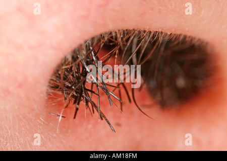 Vibrissae - hair growing out of a man's nose - Stock Photo