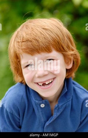 Boy with a tooth gap space losing his baby teeth deciduous milk teeth - Stock Photo