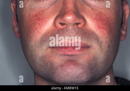 acne rosacea on cheeks and nose - Stock Photo