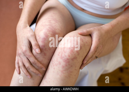woman with rash on her legs - Stock Photo