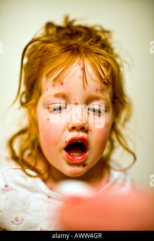 3 year old girl with chicken pox - Stock Photo