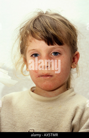 Girl suffering from measles (rubeola) - Stock Photo