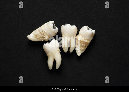 Extracted teeth on dark background - Stock Photo