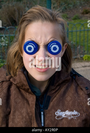 child with bottle top eyes 2008 - Stock Photo