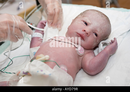 A 5 weeks premature baby is being taken cared of by the neonatality nurses minutes after being born - Stock Photo