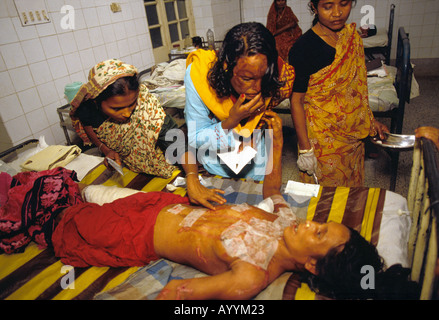 Bangladesh, Dhaka, Acid attack survivor in Dhaka hospital - Stock Photo