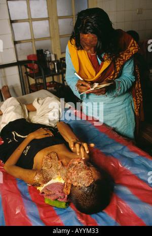 Acid attack survivor is treated in the burns unit of Dhaka Hospital, Bangladesh - Stock Photo