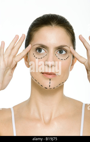 Woman with plastic surgery markings on face, holding temples, looking away - Stock Photo