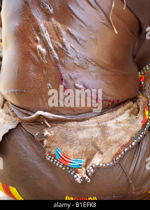 The raw scars on a Hamar woman's back after being whipped at a 'Jumping of the Bull' ceremony. - Stock Photo