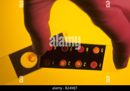 CLOSE UP GLOVED HAND HOLDING LABORATORY SLIDE - Stock Photo