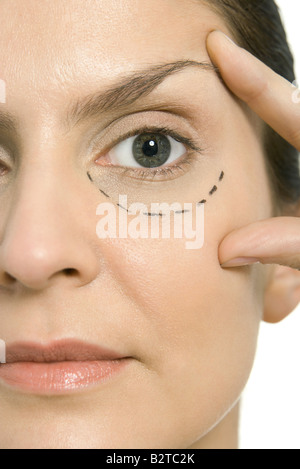 Woman with plastic surgery markings under one eye, touching face, looking at camera, close-up - Stock Photo