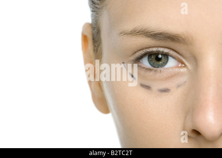 Young woman with plastic surgery markings under eye, cropped view - Stock Photo