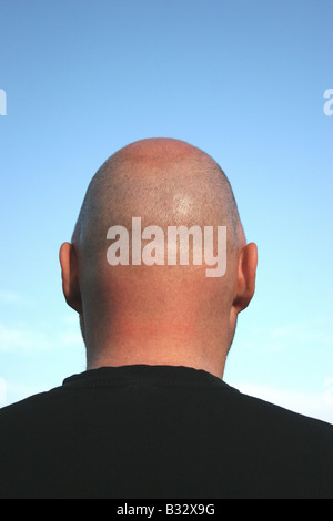 bald head - Stock Photo