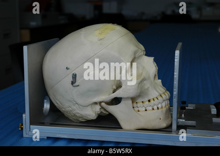 Bone length measuring device here with human hand bones used by forensic medical students at university - Stock Photo