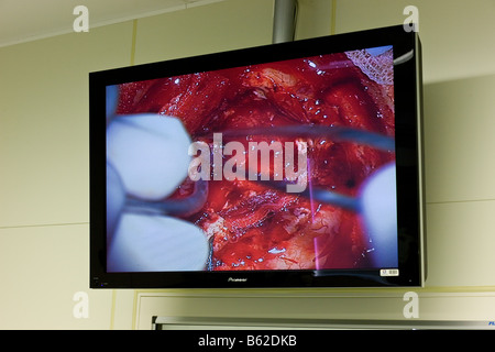 Close up of computer screen showing neurosurgeons working on removing benign brain tumor, Reykjavik, Iceland - Stock Photo