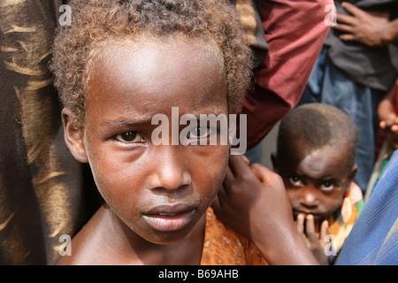 Undernourished somalian refugee boy in refugee camp in Dadaab, at the border of Somalia and Kenya - Stock Photo