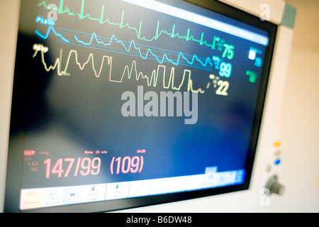 how to get a free blood pressure monitor uk