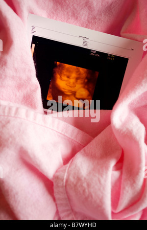 Three dimensional ultrasound photo - Stock Photo