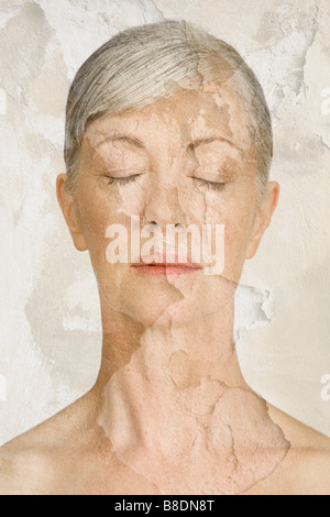 Woman with cracked and peeling skin - Stock Photo