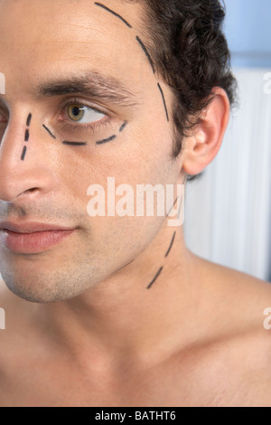 Cosmetic surgery. Patient with marks on his face in preparation for cosmetic surgery. - Stock Photo
