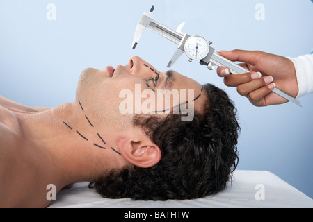 Cosmetic surgery. Vernier calipers being used by a surgeon to measure the length of the nose of a patient - Stock Photo