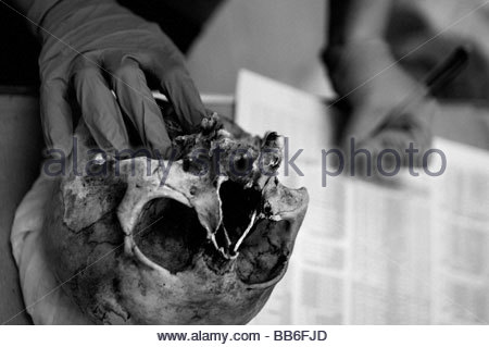 Forensic archaeologist examining a human skull at the mortuary facility of ICMP commission of missing persons in - Stock Photo