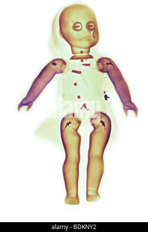 color enhanced x-ray of a doll - Stock Photo