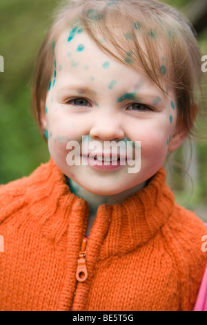 Toddler girl with Chickenpox - Stock Photo