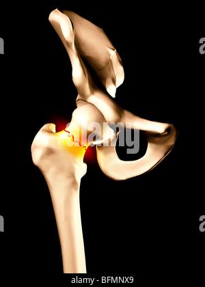 Fractured hip bone, artwork - Stock Photo
