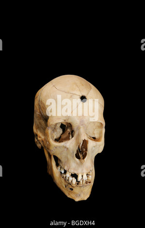 Bullet hole with radiating fractures in human cranium - Stock Photo