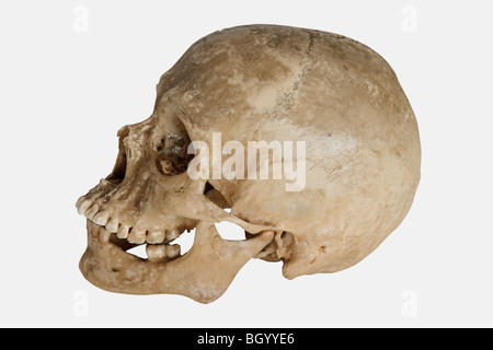 Human Skull (Homo sapiens)