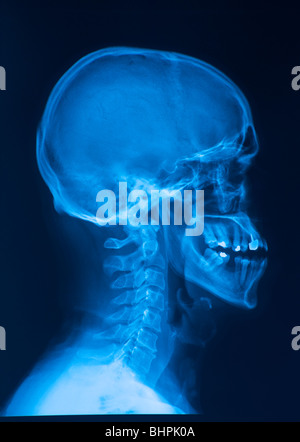 side skull x-ray image - Stock Photo