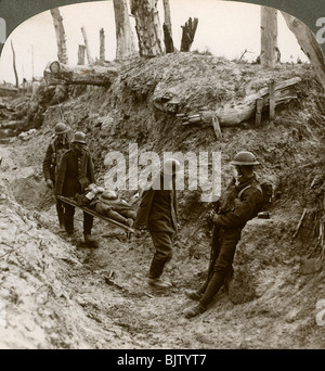 German prisoners carrying British wounded, World War I, 1916. - Stock Photo