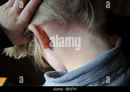 Birth mark or portwine stain on back of boy's neck, head and face - Stock Photo