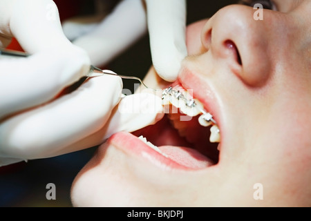 A Teenager With Braces Having Their Mouth Examined By The Dentist - Stock Photo