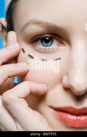 A woman with a plastic surgery guide drawn under her eye, extreme close up - Stock Photo