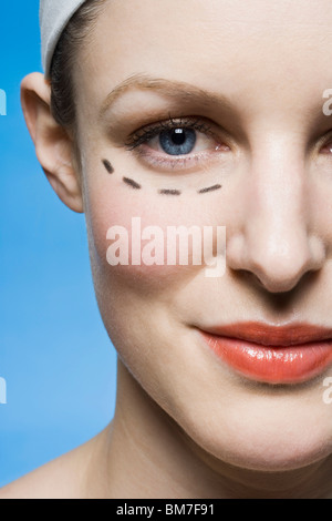 A woman with a plastic surgery guide drawn under her eye - Stock Photo