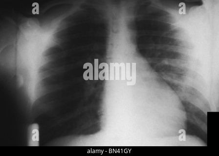 Chest x-ray showing bilateral pulmonary infection in a patient with plague - Stock Photo