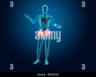 x-ray view of a human skeleton with hip joint inflammation stock, Skeleton