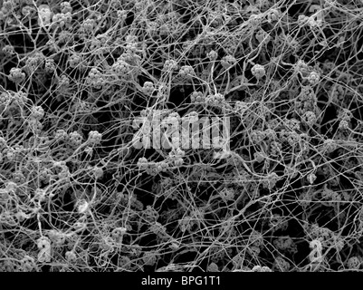 A scanning electron micrograph (SEM) of Stachybotrys chartarum, a greenish black cellulotytic fungus