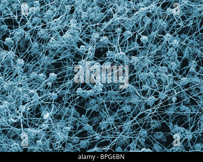 A scanning electron micrograph (SEM) of Stachybotrys chartarum