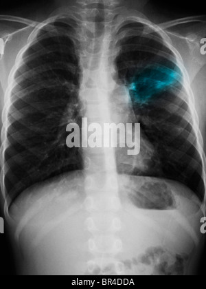 Chest x-ray of a 5 year old boy showing an infiltrate left upper lobe suggestive of pneumonia. - Stock Photo