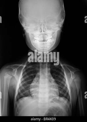 normal x-ray of the head and shoulders of a 3 year old boy, x-ray of the head and chest of a 3 year old boy - Stock Photo