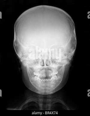 normal x-ray of the head of a 3 year old boy, x-ray of the head and chest of a 3 year old boy - Stock Photo