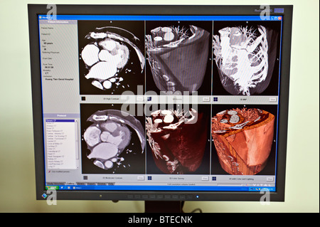 PET-CT diagnostic scan, CAT scan, on computer monitor, close up - Stock Photo