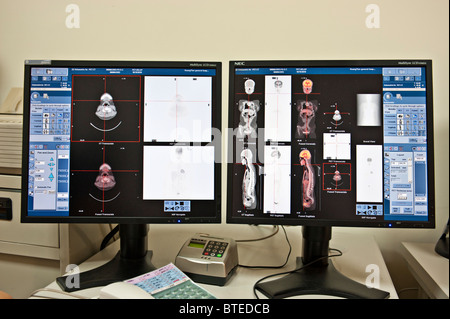 PET CT diagnostic medical scanner images on computer monitors, close up - Stock Photo