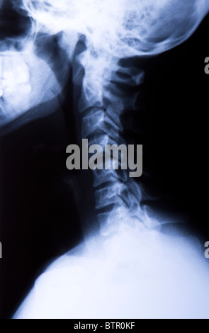 Side View of a neck X-Ray - Stock Photo