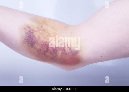 Bruising (hematoma, or haematoma) caused by internal bleeding as a result of blood sample having been taken. - Stock Photo
