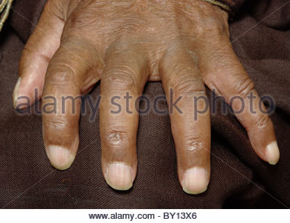 Portrait of a very old South African Malay mans hand alone - BO KAP Malaysian area South Africa - almost 100 years - Stock Photo